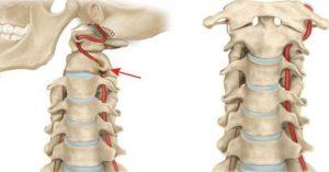 רקמות צוואר