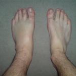 דוגמה לנפיחות ברגליים