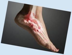 artroz-stopy